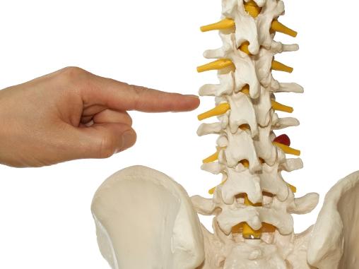 gerincsérv, porckorongsérv, hátfájdalom, csípőfájdalom, derékfájdalom